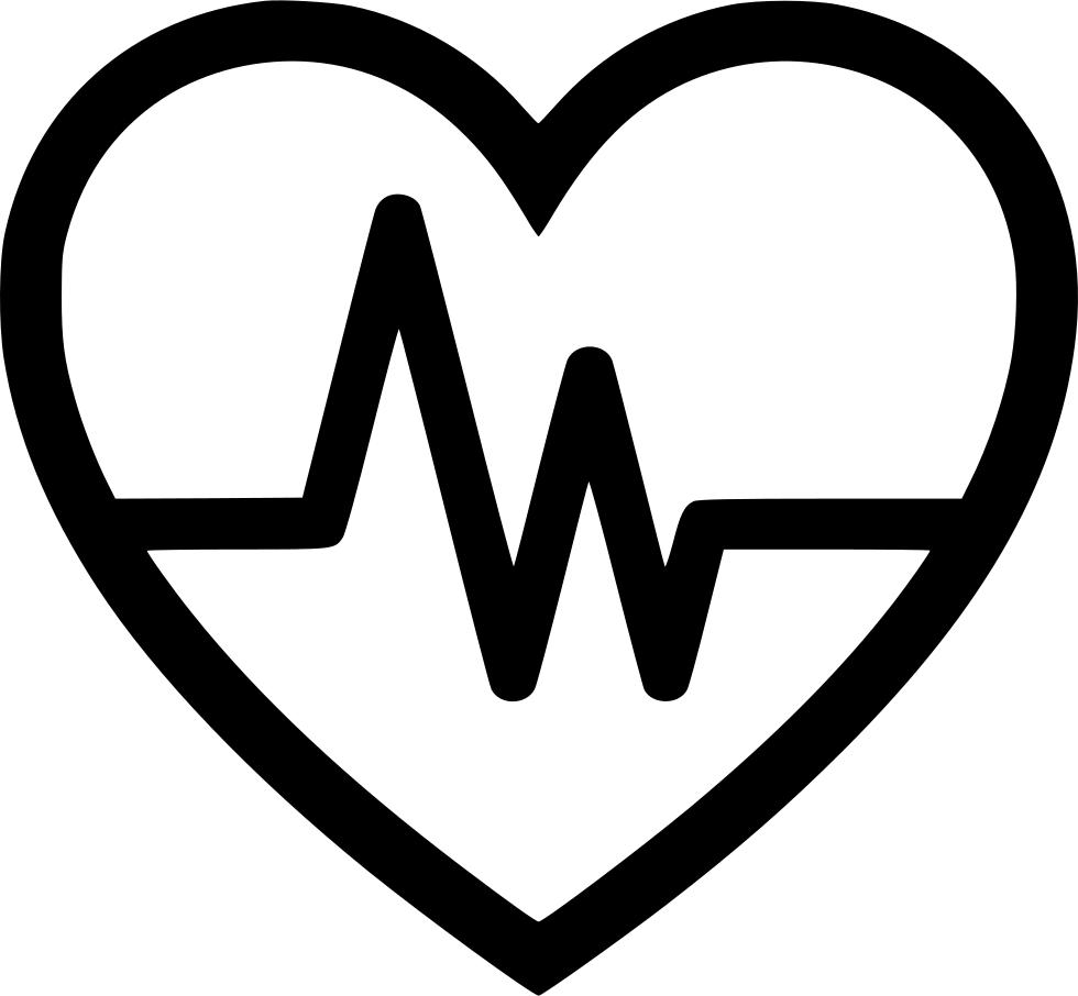 ECG in a heart